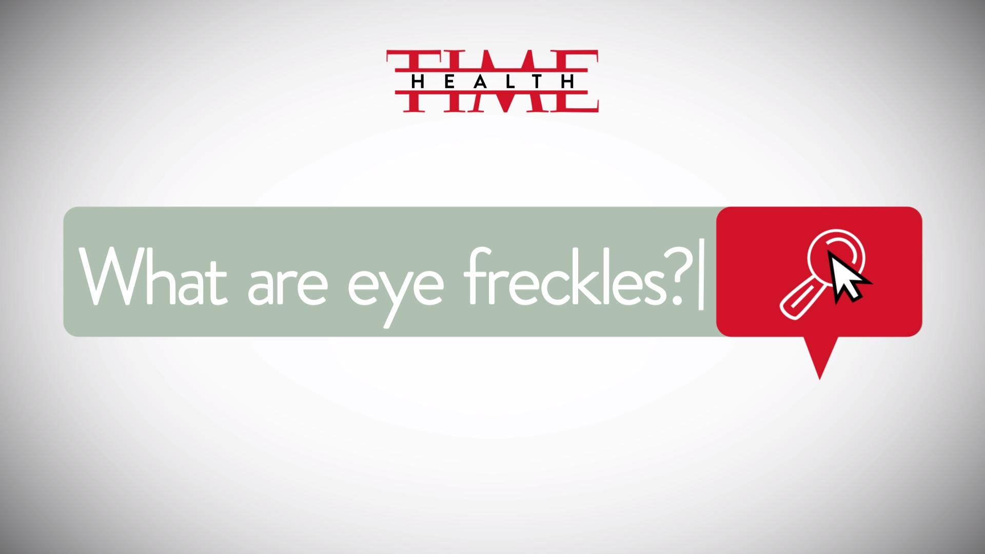 What Eye Freckles Can Tell You About Your Health - Health