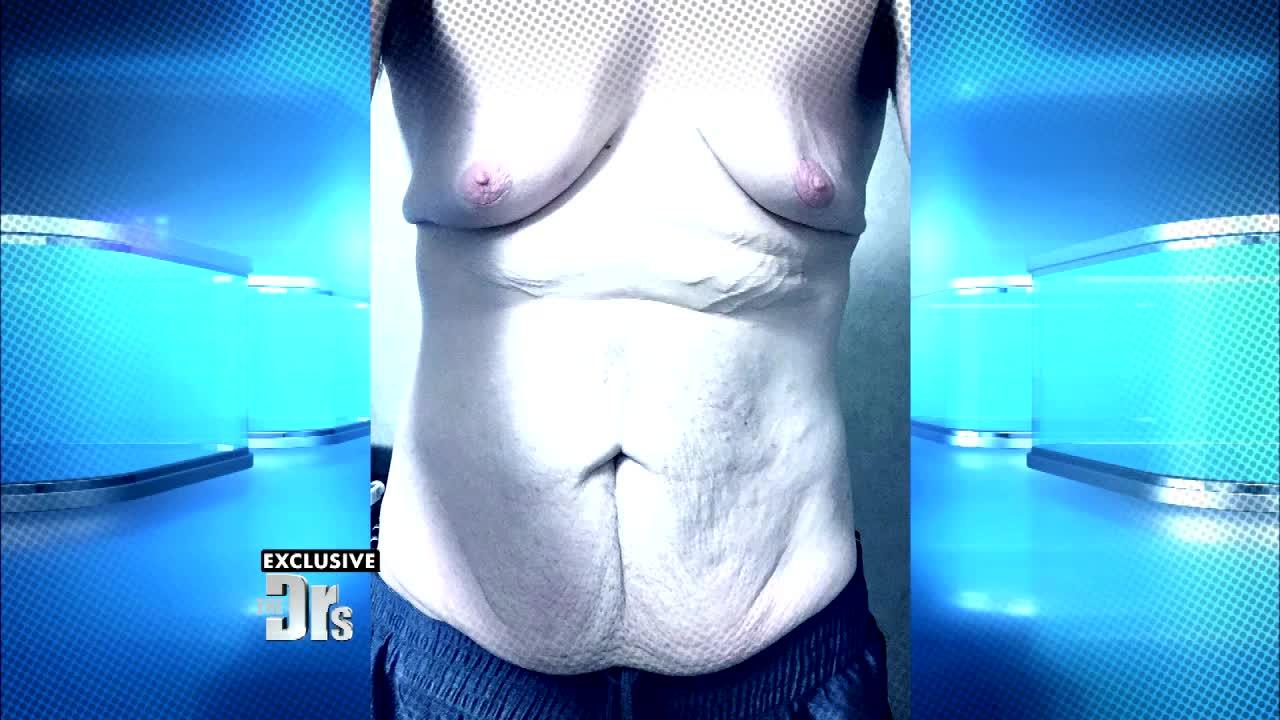 Half Their Size's Austin Shifflett Gets 8 Lbs. of Excess Skin Removed