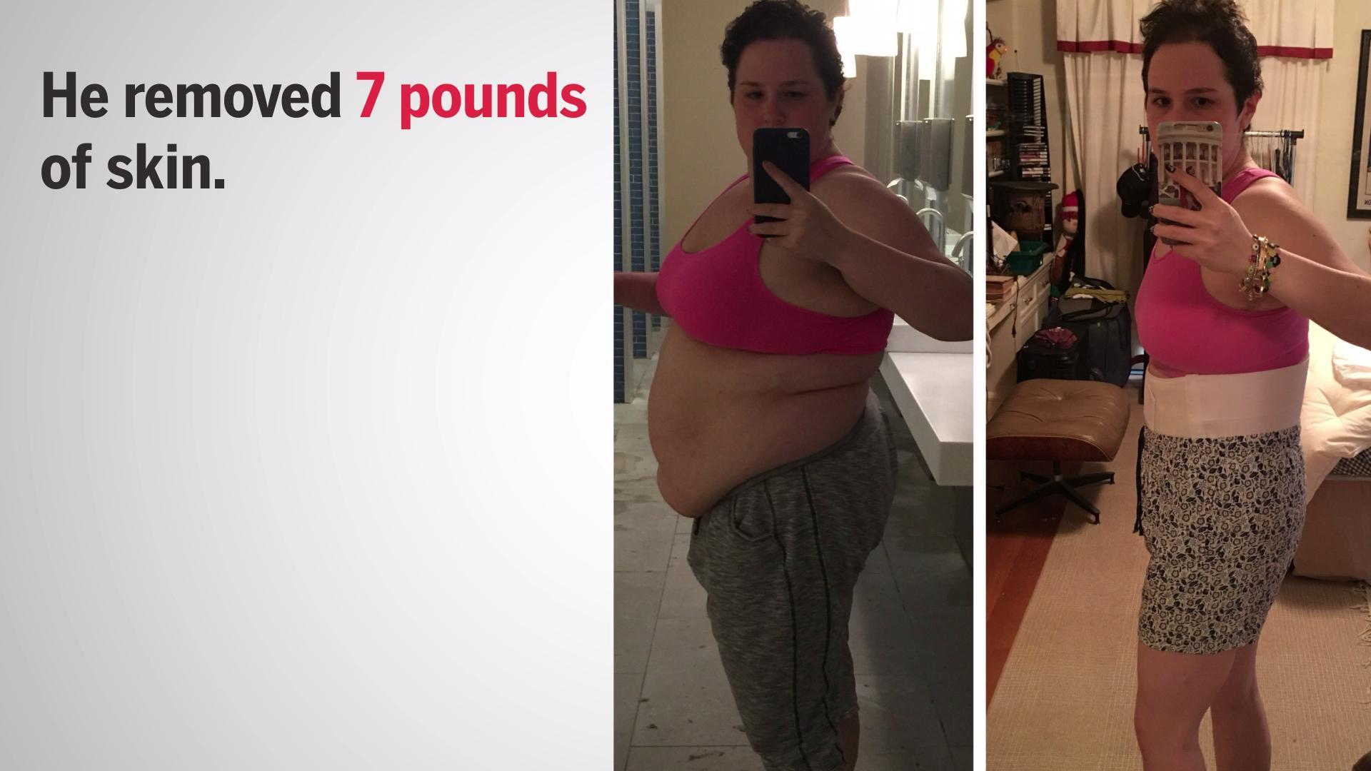 ritalin reviews weight loss