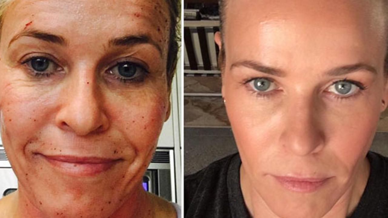 Chelsea Handler Before And After Profractional Laser